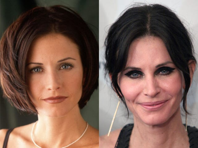 courteney cox before and after her cosmetic surgery