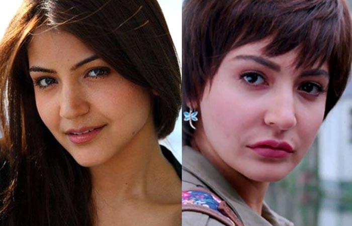Anushka Sharma plastic surgery