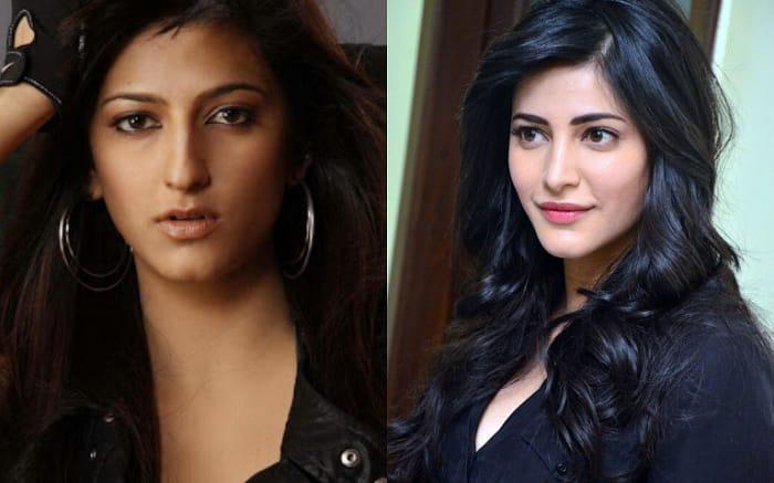 Shruti Hassan plastic surgery