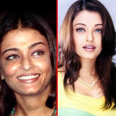 Aishwarya Rai Bachchan plastic surgery