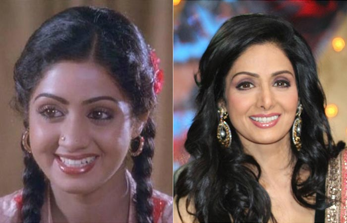 Sridevi underwent plastic surgery to look young